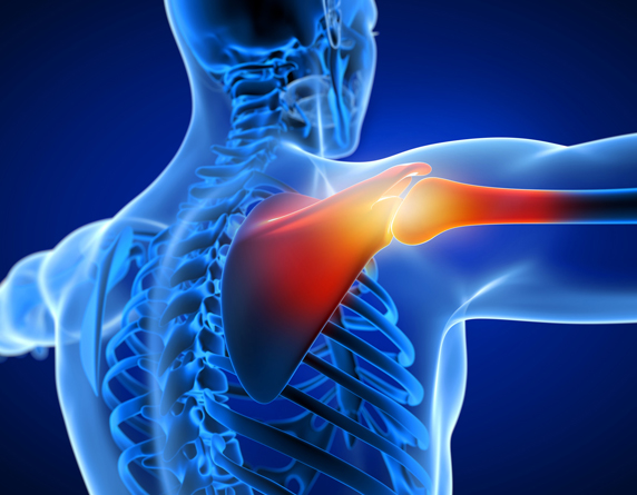 Read more about the article Shoulder Pain Treatment Without Injections Or Surgery In KL