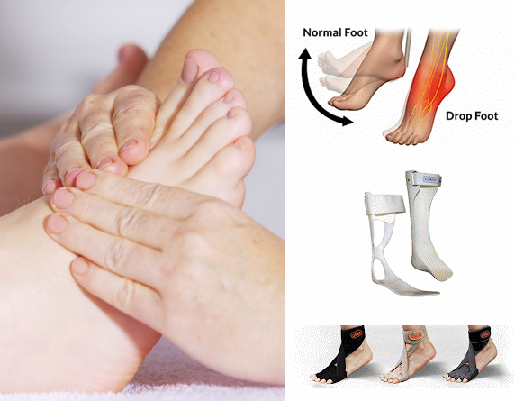 Read more about the article Foot Drop: Causes, Signs, Symptoms & Treatment In Malaysia