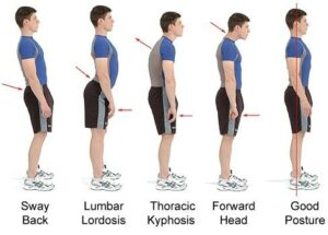 Read more about the article Best Posture Correction Treatment in Malaysia