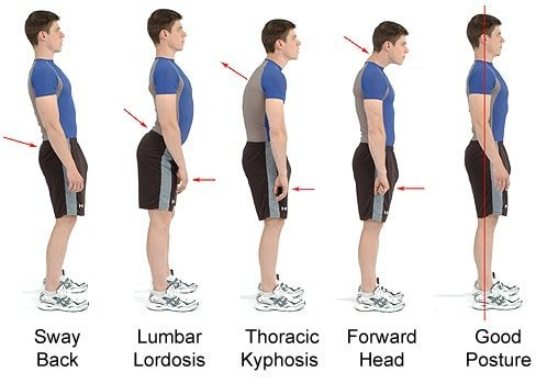 You are currently viewing Best Posture Correction Treatment in Malaysia