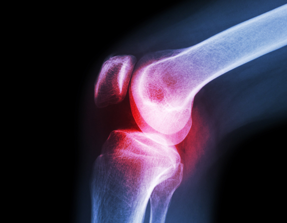 Read more about the article Meniscus Tear: Signs, Causes & Treatment Without Surgery