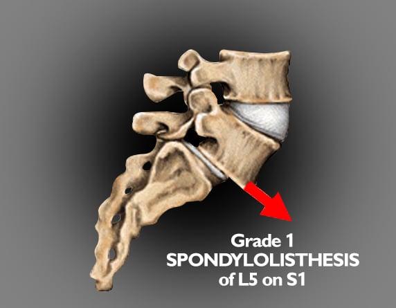 Read more about the article Spondylolisthesis, Spondylolysis & Spondylosis