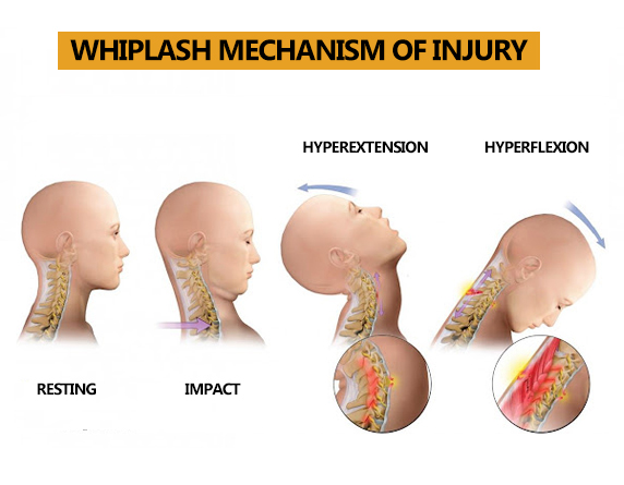 Read more about the article Whiplash Injury Treatment in Kuala Lumpur, Malaysia