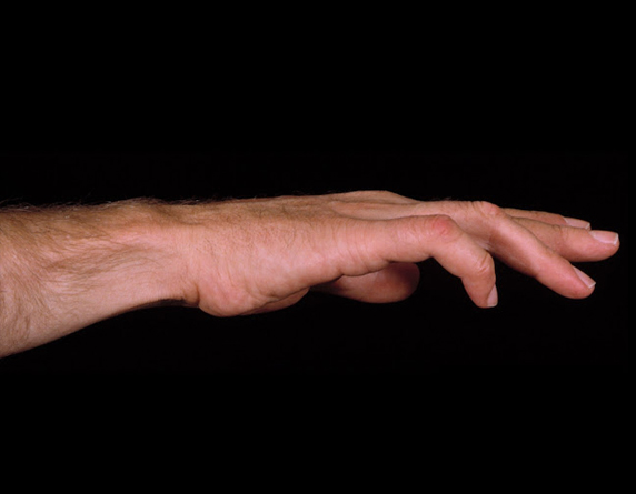 Read more about the article Ulnar Nerve Palsy, Claw Hand & Wrist Pain Treatment
