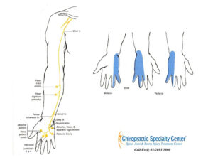 Read more about the article Treatment for Ulnar nerve pain and injury in Malaysia