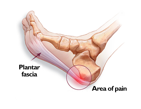 Read more about the article Heel Pain Causes & Best Treatment Options In Malaysia