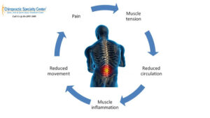 Read more about the article What are the Mechanisms are involved in sensation of Pain?