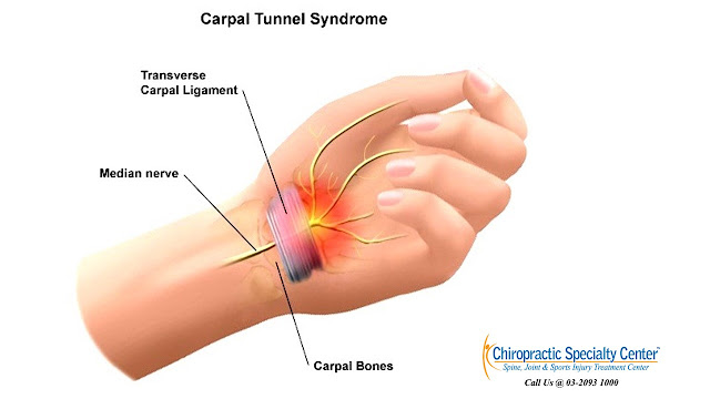 You are currently viewing How to Evaluate and Diagnose Carpal Tunnel Syndrome