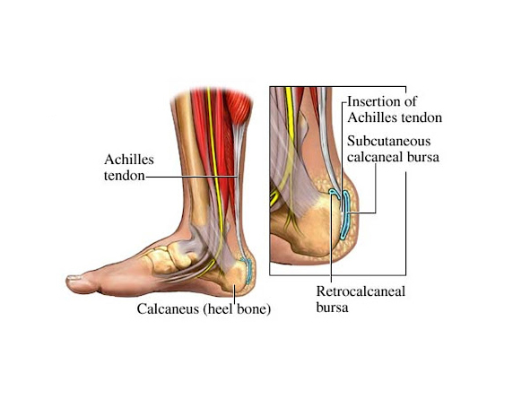 Read more about the article Foot Pain Treatment Without Injections Or Surgery