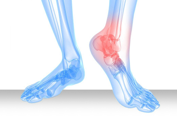 Read more about the article Risk Factors For Achilles Tendon Injuries In Malaysia