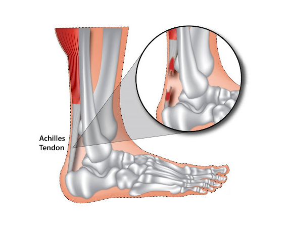 Read more about the article Achilles Tendinitis Treatment Without Injections Or Surgery