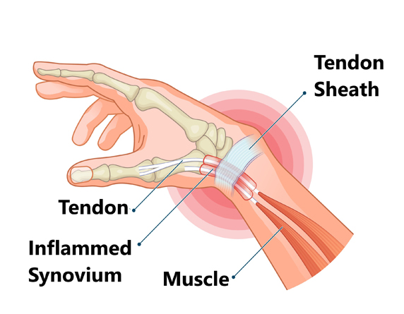 Read more about the article De Quervain's Tenosynovitis Treatment For Wrist & Thumb Pain