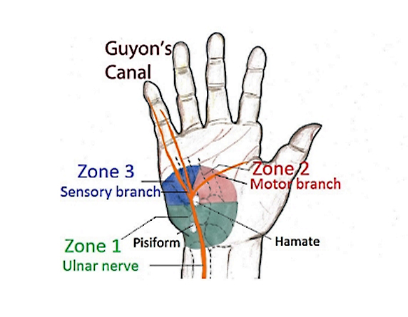Read more about the article Ulnar Nerve Compression & Wrist Treatment In Kuala Lumpur