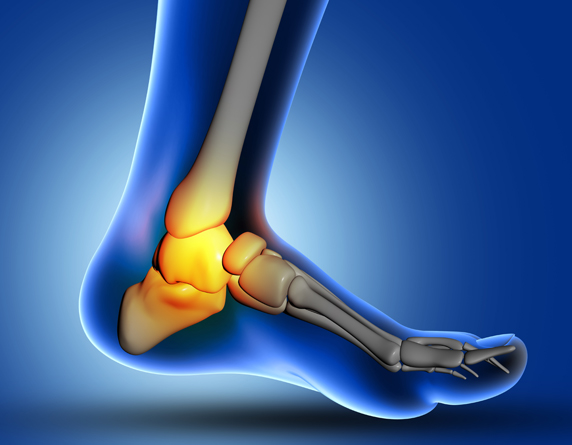 Read more about the article Best Heel Pain Treatment in Malaysia