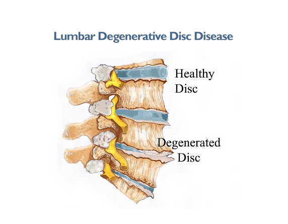 Read more about the article Degenerative Disc Disease Cause An Treatment In Malaysia