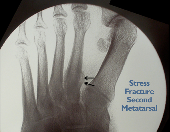 Read more about the article Stress Fracture And Foot Pain In Kuala Lumpur, Malaysia