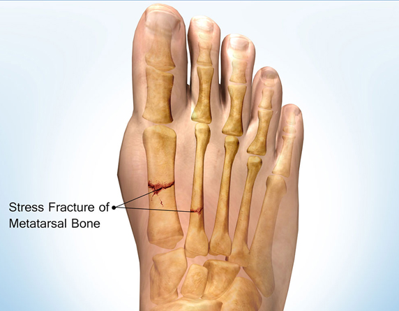 Read more about the article Stress Fractures Of The First Metatarsals & Foot Pain