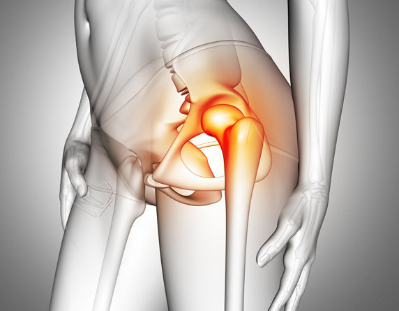 Read more about the article Best Hip Pain & Back Treatment Without Surgery In Kuala Lumpur