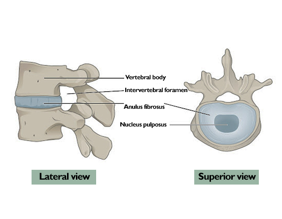 Read more about the article Spinal Disc Damage Causes & Best Treatment Without Surgery