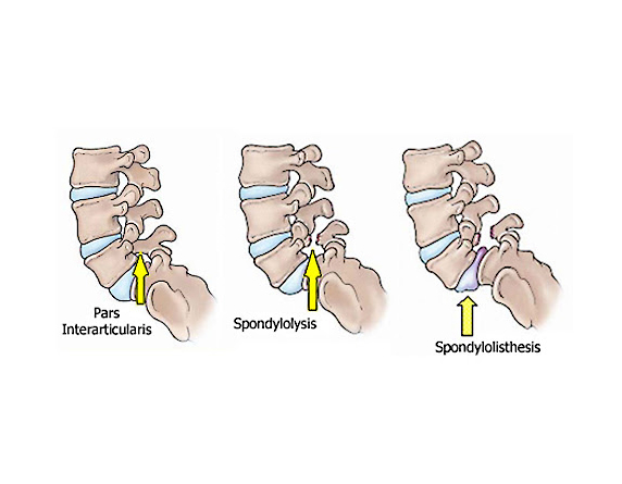 Read more about the article Spondylolisthesis & Spondylolysis Causes And Best Treatment