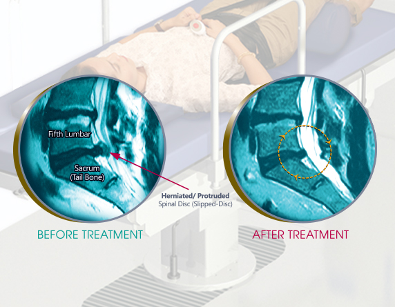 Read more about the article The Best Back Pain And Slip-Disc Treatment In Malaysia