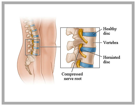 Read more about the article Degenerated Disc Or Desiccated Disk In Neck & Back Pain