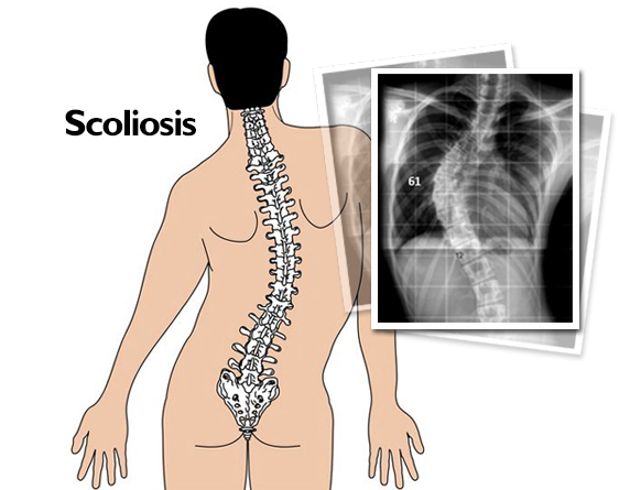 Read more about the article Scoliosis Treatment In Kuala Lumpur, Malaysia
