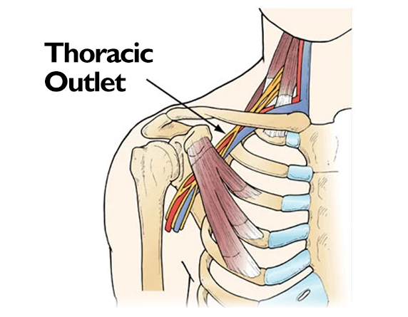 Read more about the article Best Thoracic Outlet Syndrome Treatment In Malaysia