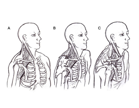 Read more about the article Common Causes of Thoracic Outlet Syndrome in Malaysia