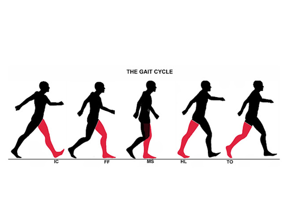 Read more about the article Walking Pain, Backaches & Leg Issues With Activity